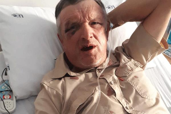 <p>Kroondal farmer attacked</p>