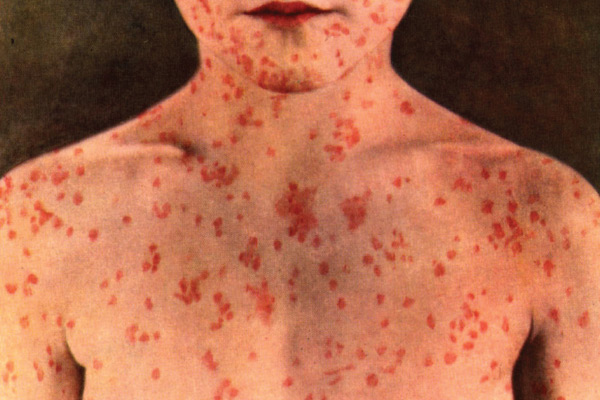 One of the physical symptoms of measles: small whitish spots within a red spot on the inside of the cheek and lips.
